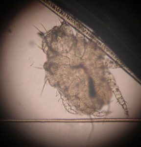 Parasite Cheyletiella observé au microscope-troubles cutanés