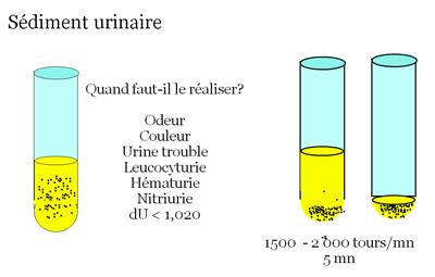 Intérêt de l'analyse des urines dans le diagnostic des ...