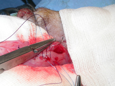 sutures - cystotomie