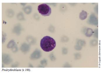 cellules vues au microscope - anemie