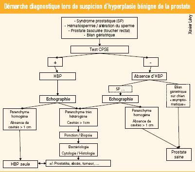 tableau diagnostique suspicion hyperplasie benigne prostate