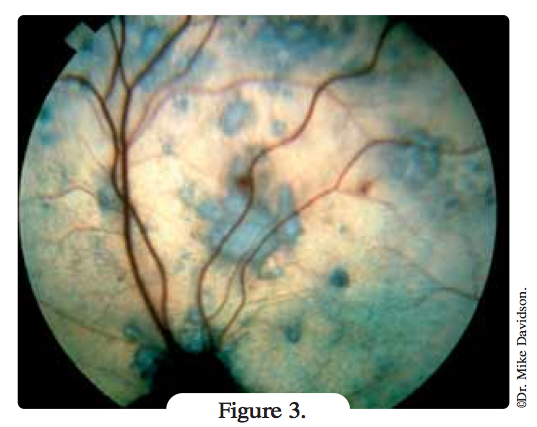lesion-oculaire-hypertension-chat