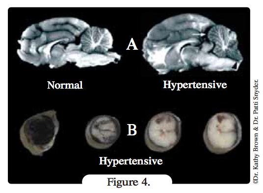 coupe-cerveau-hypertension-chat
