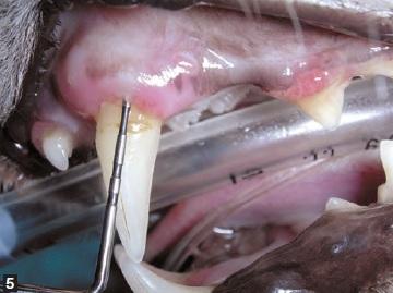 examen insertion sonde gencive - maladie parodontale