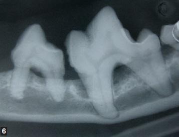 radio intra-orale - maladie parodontale