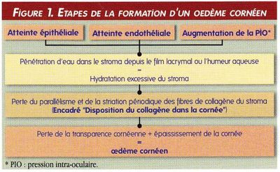 synthese etapes formation - œdeme corneen