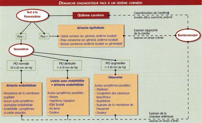 tableau diagnostique - œdeme corneen