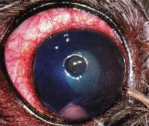 œil - oedeme corneen