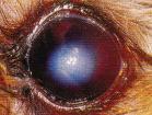 dystrophie endotheliale - œdeme corneen