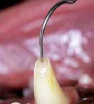 dent ouverture chambre pulpaire-traumatismes dentaires