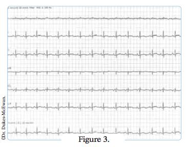 electrocardiogramme 6 pistes - arythmies cardiaques