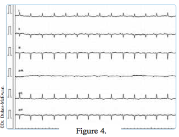 electrocardiogramme chat age - arythmies cardiaques