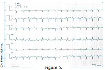 electrocardiogramme chat insuffisant cardiaque -