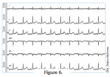 electrocardiogramme chat cardiomyopathe - arythmies cardiaques