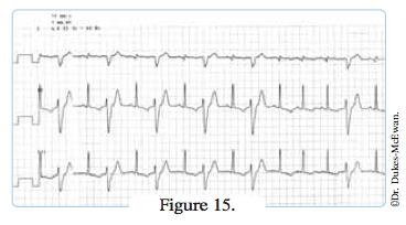 electrocardiogramme - arythmies cardiaques