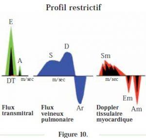 graphique profil restrictif - cardiomyopathie restrictive