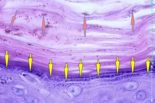 vue microscopique epiderme - ichtyose golden retriever