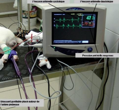 oscillometre - mesure pression arterielle