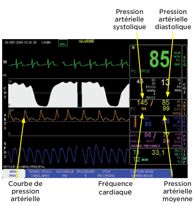 courbes de mesures sur ecran - mesure pression arterielle