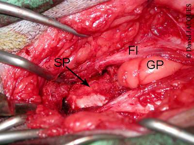 incision fascia - symphysiodese pubienne juvenile
