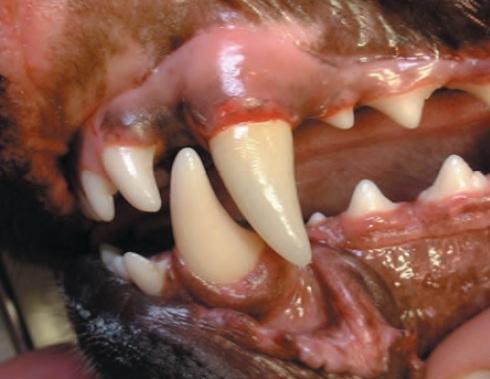 couronne dentaire ceramique - traumatismes dentaires