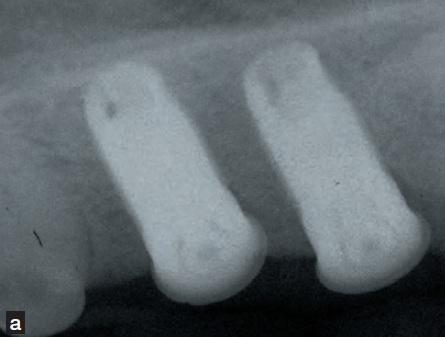 radio dentaire - traumatismes dentaires