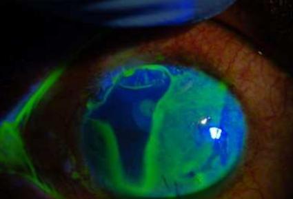 oeil sous lumière uv - fluorescine