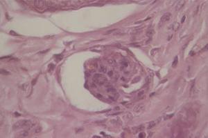 Hyperparathyroïdie tertiaire suite à une néphropathie congénitale