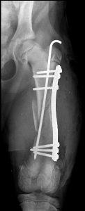 radio fracture - ostéosynthèse élastique